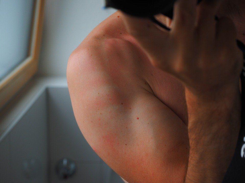 癌症全面睇:紫外線指數強度達3 足以曬傷