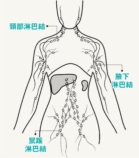 【淋巴癌】醫言有理:淋巴癌擴全身 仍有逾半機會治癒