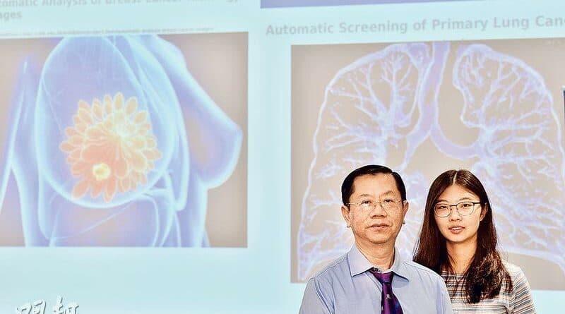 【了解肺癌】中大AI讀CT圖 30秒辨早期肺癌 準確率逾九成 冀兩年後港醫院應用