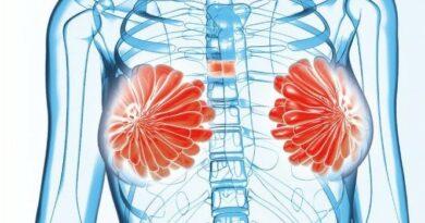 醫學滿東華:乳癌驚魂