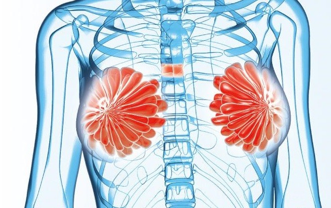香港遺傳性乳癌家族資料庫 BRCA基因突變 患遺傳性癌症 乳癌