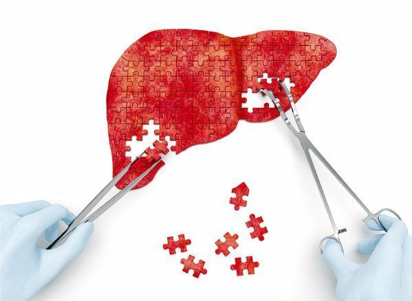 【肝炎與肝癌】改良電療瞄準肝癌 射死腫瘤 紓緩末期苦