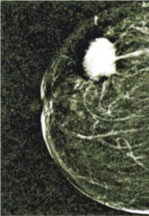 【有片:了解乳癌】問醫生:術前化療縮瘤 助留乳房
