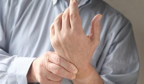 認清類風濕關節炎 把握治療黃金期
