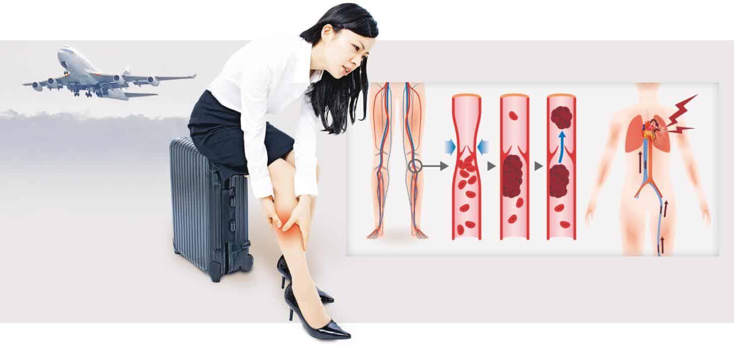 【有片】癌魔引發「經濟艙綜合症」 無搭飛機也中招 血塊上肺攞命