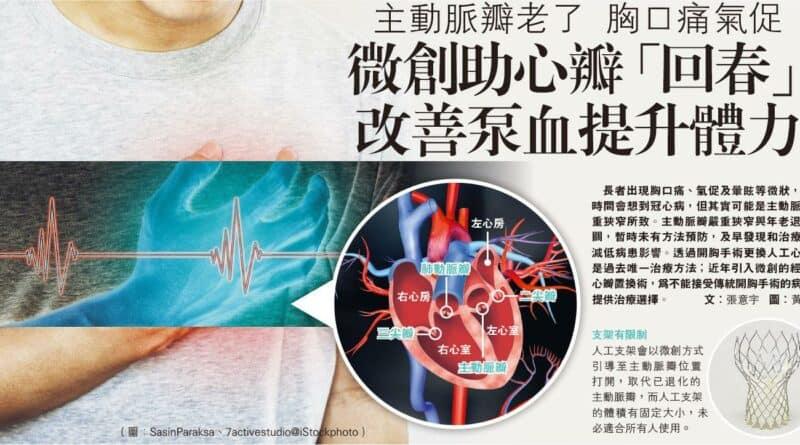 【有片】主動脈瓣老了 胸口痛氣促 微創助心瓣「回春」 改善泵血提升體力