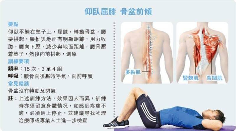 【運動消閒】好Zone動:背痛康復要運動 骨盆前傾練深層肌肉