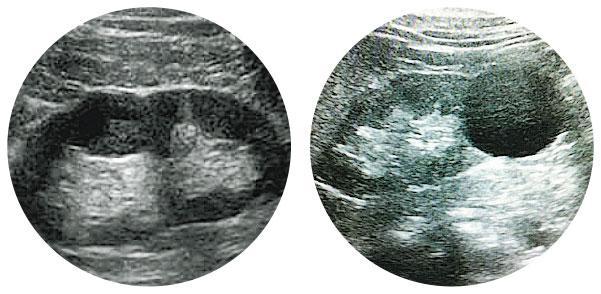陰影驚魂——超聲波照腎發現水囊,若影像呈黑色圓圈,代表水囊「空心」(Bosniak Type 1,右圖),多屬良性;但若呈灰或白色「實心」陰影(Bosniak Type 4,左圖),就有可能是癌症。(圖:受訪者提供)