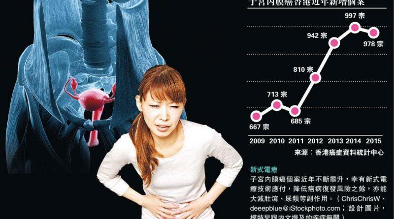 【女性健康】減副作用 復發率<3% 手術+近接電療 夾擊子宮內膜癌