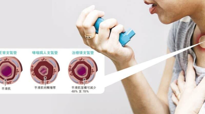 射頻打通支氣管 新招治嚴重哮喘