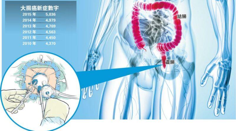 【了解腸癌】微創切瘤減風險 新手術治直腸癌 免割肛之苦