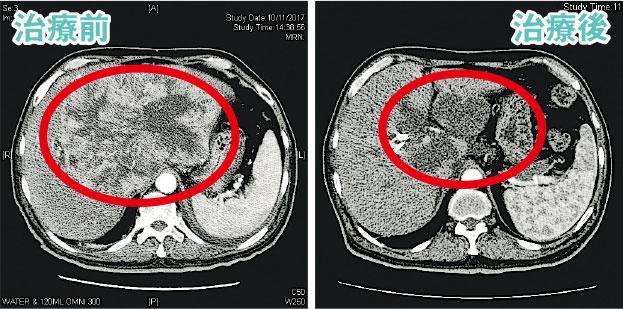 肝炎與肝癌