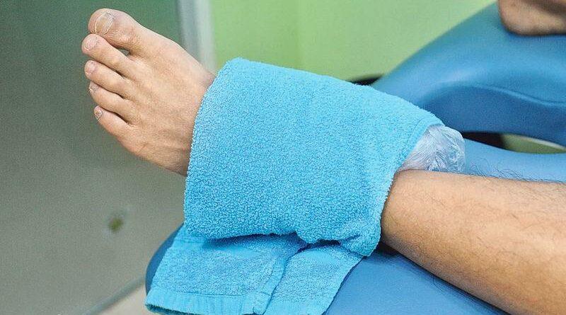 知多啲:扭傷即時冷敷減腫脹