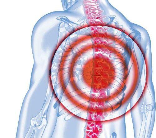 腎癌轉移脊骨 新放療防癱瘓