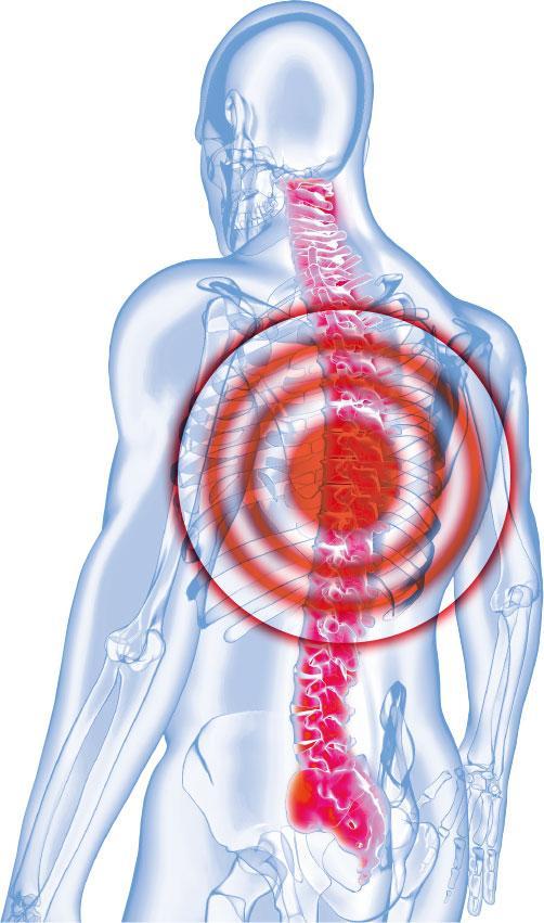 腎癌,脊骨