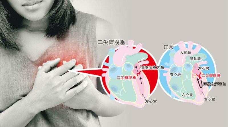 二尖瓣脫垂 血液倒流傷心 修補心臟「閘門」 微創不及開胸
