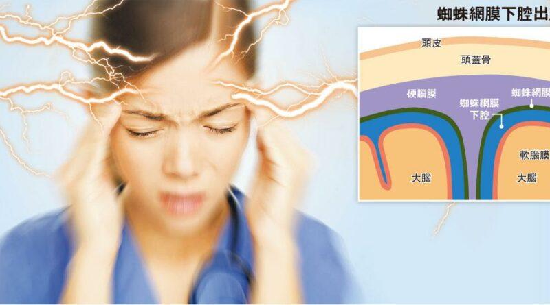 【了解中風】頭痛如雷擊即求醫 蜘蛛網膜下腔出血 五成奪命