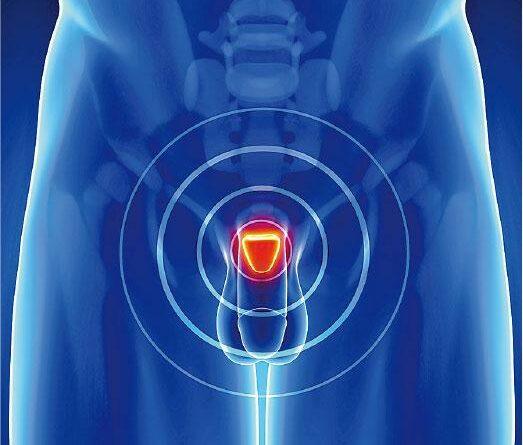 【男性健康】最佳男主角:前列腺癌抽針檢查新方向