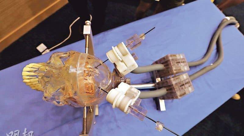 兩大研發「腦手術GPS」機械人 助紓柏金遜