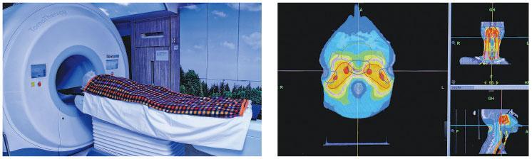 360°狙擊鼻咽癌細胞 攤薄輻射量 副作用大減