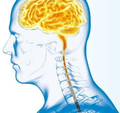 立體定向放療 瞄準腦轉移癌魔