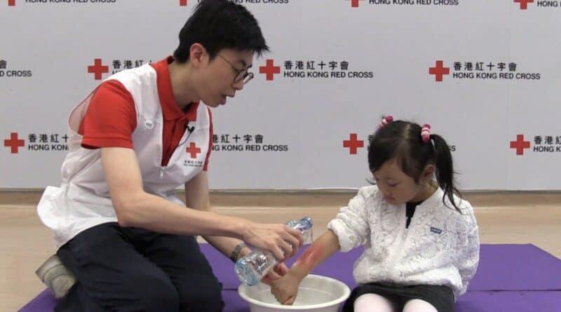 正視家居危機 小心兒童燙傷