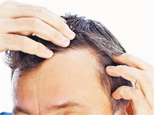 知多啲:生髮藥影響性功能 停服可恢復
