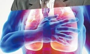 肺癌; 標靶藥; 莫樹錦; IPASS;