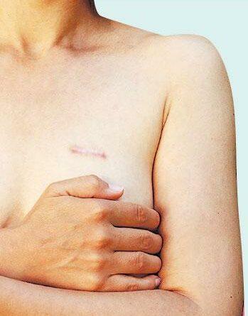 乳癌, 微創手術,
