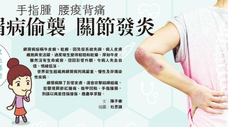 銀屑病, 牛皮癬, 乾癬, 關節炎, 關節痛,