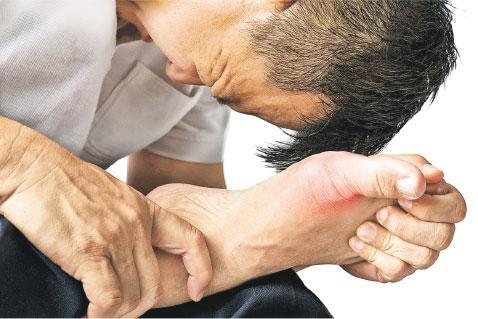 痛風, 關節痛症, 風濕,