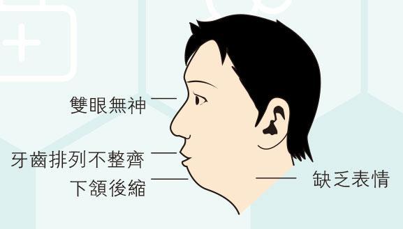 唔使睇醫生,鄭志文,睡眠窒息,肥胖,打鼻鼾,兒童睡眠窒息症,長者健康,鼻塞,鼻敏感,耳鼻喉科,陳鍵明,