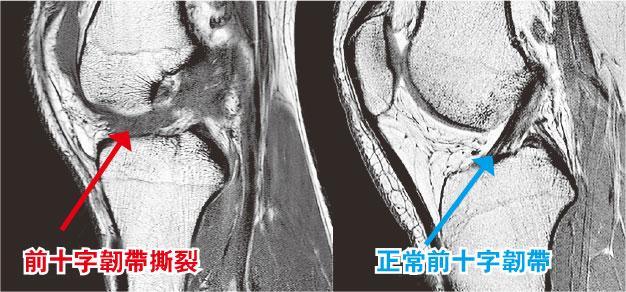 【運動消閒】滑雪傷膝 韌帶撕裂手尾長 初哥高手皆易中招