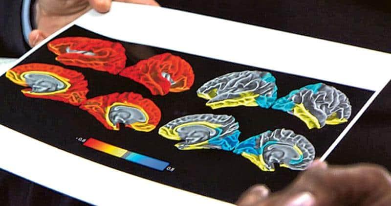 少年腦認知發展研究,大腦皮層,美國國立衛生研究院,智能手機,NIH,平板電腦,電子奶嘴,iPhone