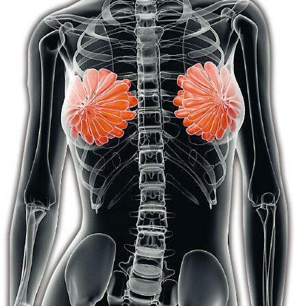 乳癌,腫瘤,癌症,標靶治療,化療,荷爾蒙治療