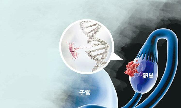 卵巢癌,乳癌,前列腺癌,胰臟癌,癌症,腫瘤,BRCA基因突變,PARP