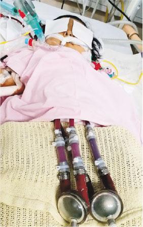 器官捐贈,器官捐贈卡,愛滋病,台灣,愛滋器官,醫院管理局,李威廉,