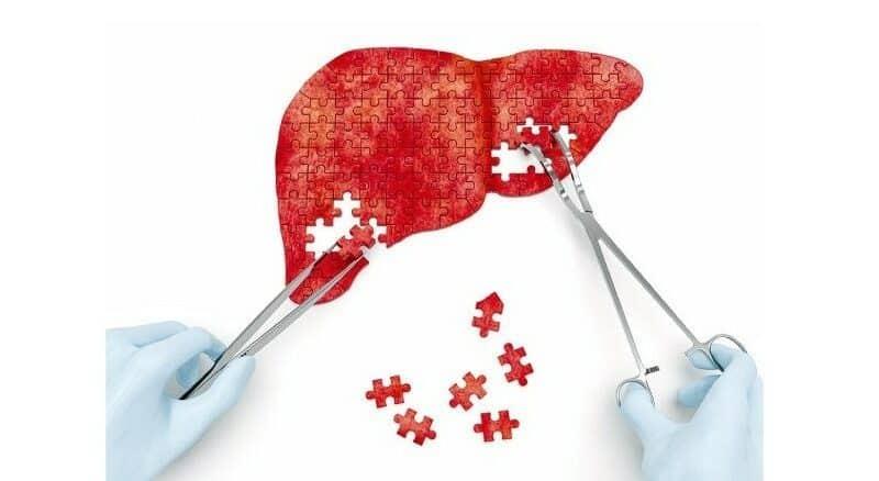 知多啲:肝炎可互捐器官