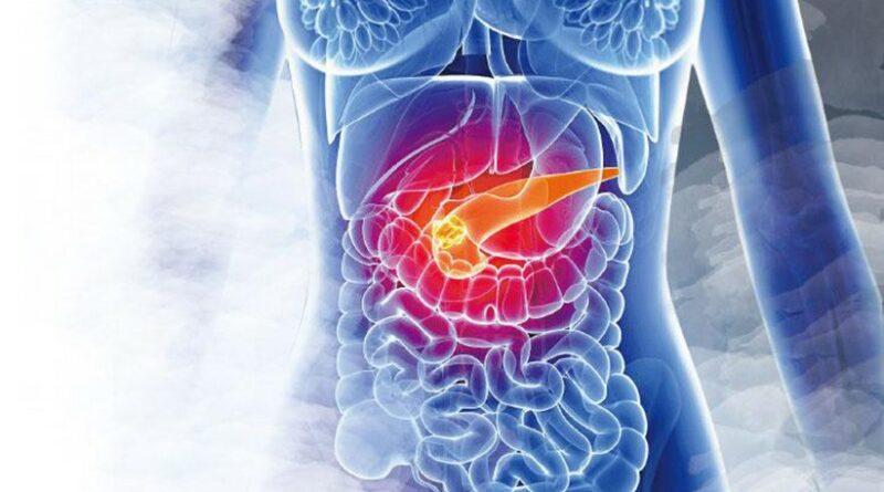 胰臟癌   死亡率高?胰臟癌病徵、引致基因突變5大高危因素 7類人士提高警覺