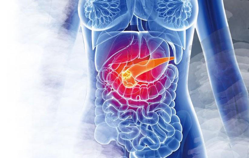 胰臟癌,癌症,遺傳,基因突變,吸煙,酗酒,肥胖,慢性胰臟炎,遺傳性腫瘤綜合症,家族性胰臟癌,遺傳性乳癌,卵巢癌症候群,基因測試,