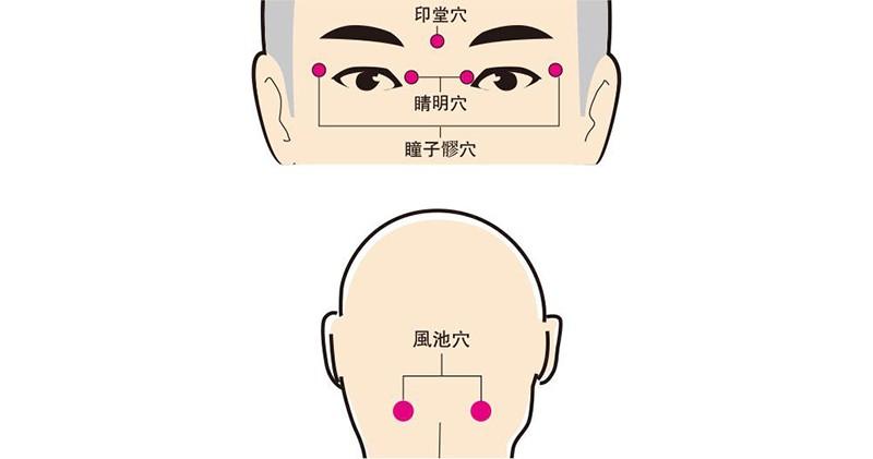 中醫治療,針灸,穴位,護眼,近視,老花,
