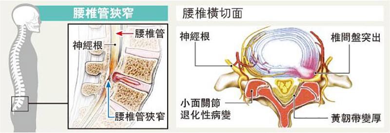 腰椎管收窄,腳痛,郭業東,黃仕雄,椎間盤突出,脊椎關節炎,黃韌帶肥厚,脊髓腫瘤,