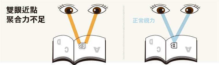 雙眼協調不足,視力模糊,近視,視覺治療,