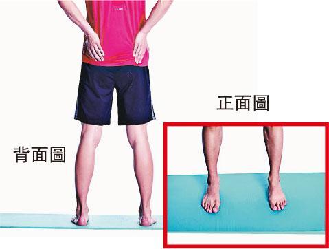 【運動消閒】內八字腳可造成膝關節痛 物理治療師教你矯正運動