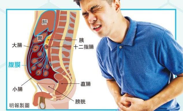 【有片】加熱化療藥洗肚 腹膜癌有救