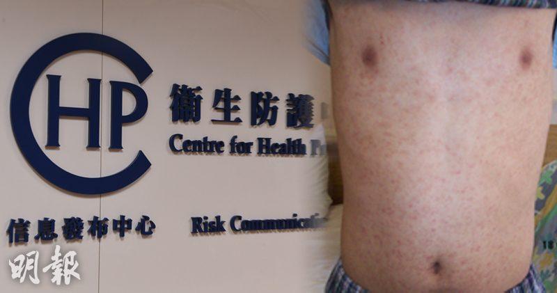 麻疹患者出疹前後4天同具傳染力 僅限紓緩治療 嚴重者可致命