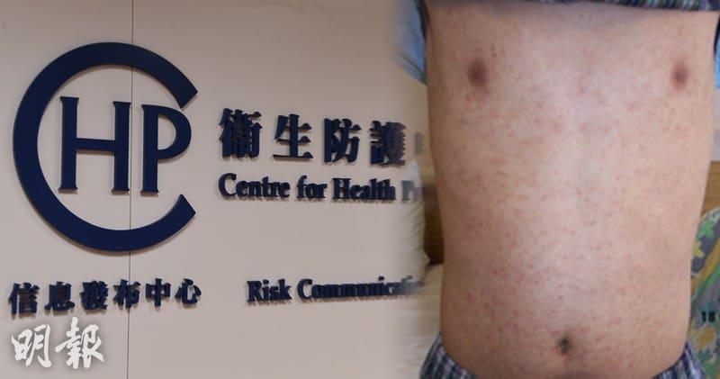 麻疹 麻疹爆發 疫苗 麻疹疫苗 麻疹病徵 麻疹治療 麻疹免疫 麻疹疫苗生效 麻疹照片 麻疹水痘 衛生防護中心