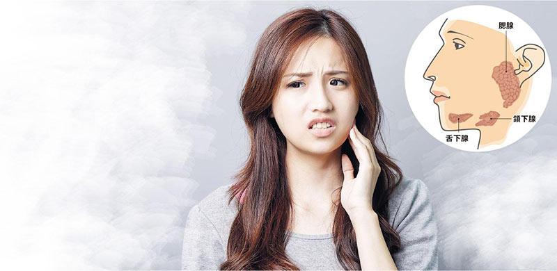 口水腺結石, 頜下腺結石,