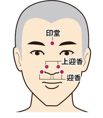 鼻敏感,中藥,針灸,中醫治療,按穴,