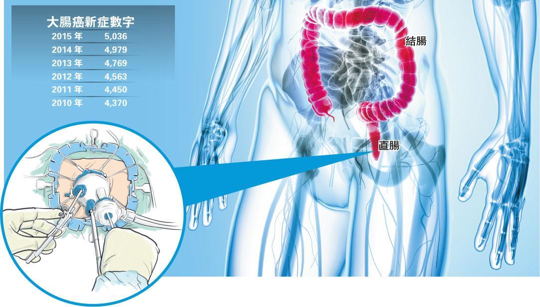 預防大腸癌貼士:多菜少肉 每天運動30分鐘